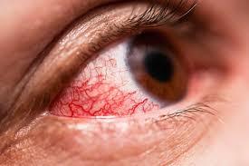 Conjuntivitis está 62% más alta que el año pasado: van unos 70 mil