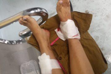 Mujer supuestamente se propina disparo accidental en ambas piernas