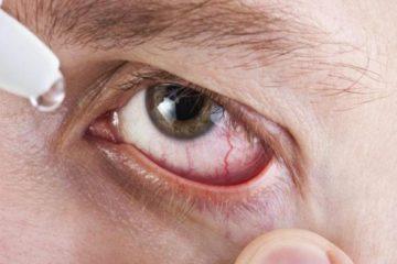 Síndrome de ojo seco puede derivar en necesidad de trasplante de córnea