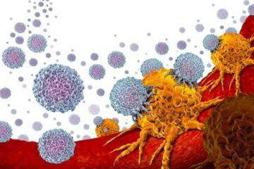 Cáncer de próstata: el innovador tratamiento que puede combatir uno de los tipo de cáncer más comunes entre los hombres