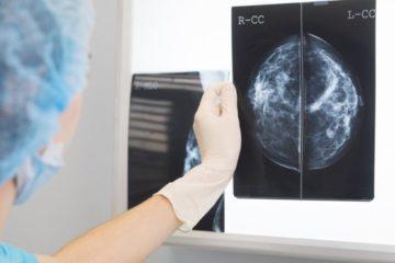 Cómo la inteligencia artificial «supera a médicos» en el diagnóstico de cáncer de mama
