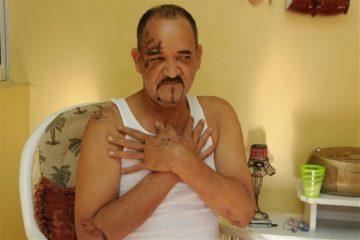 """Merenguero Jerry Vargas se encuentra """"delicado"""" en cuidados intensivos"""