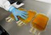Terapia con plasma de convalecientes puede disminuir la gravedad de COVID-19