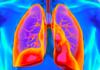 Realizan campaña para sensibilizar sobre la hipertensión pulmonar en RD